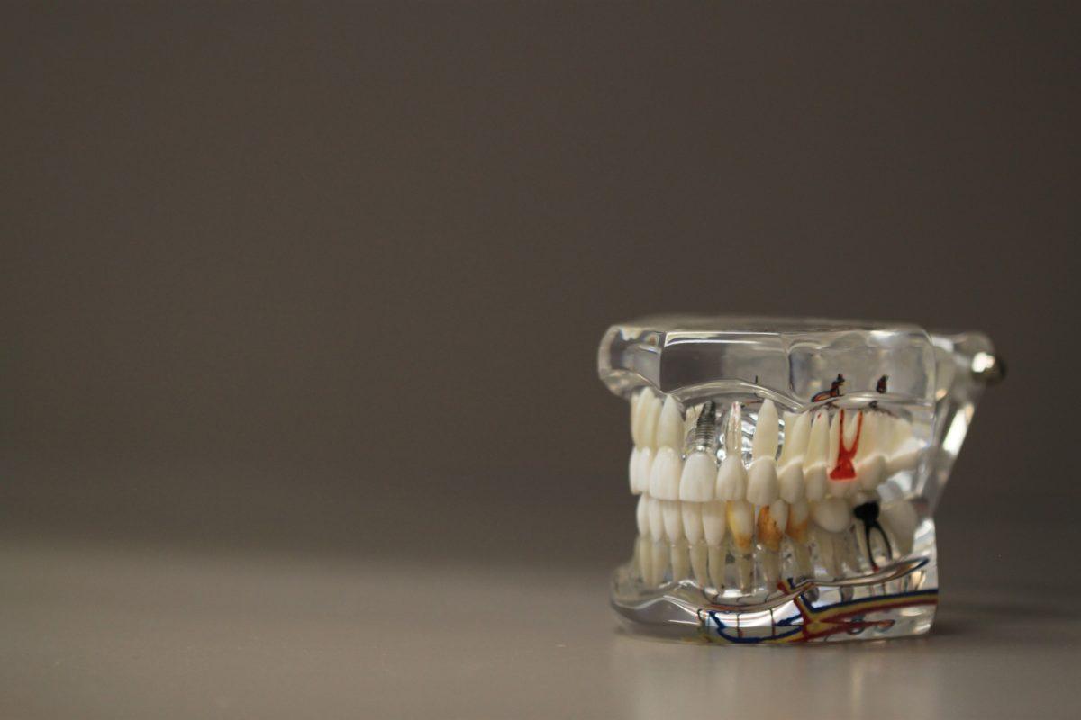 Złe podejście odżywiania się to większe niedobory w ustach oraz dodatkowo ich zgubę